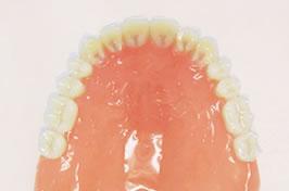 当院で特に力をいれている入れ歯